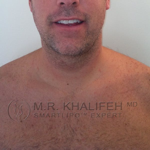 Chin and Neck Liposuction Gallery - Patient 3761802 - Image 2