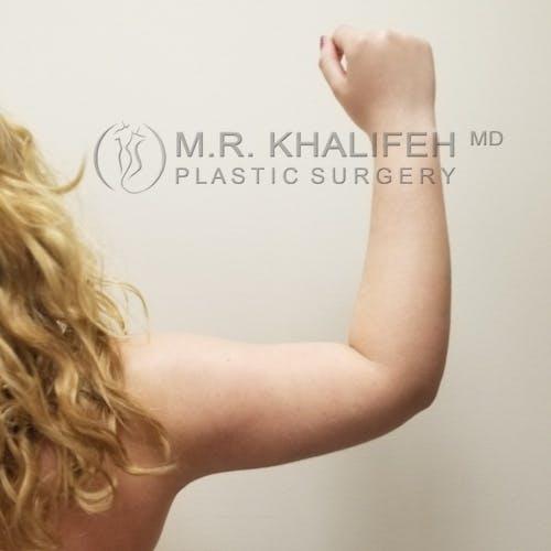 Arm Liposuction Gallery - Patient 3761801 - Image 8