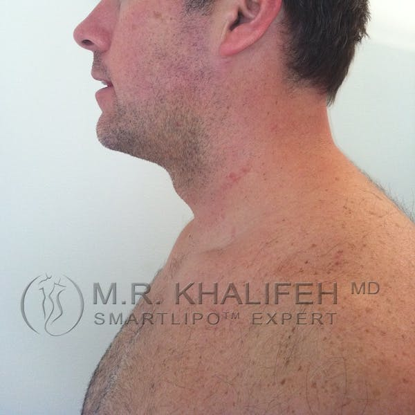 Chin and Neck Liposuction Gallery - Patient 3761802 - Image 4