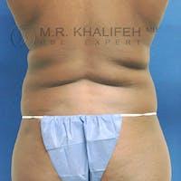 Midback-Bra Line Lipo Gallery - Patient 3761808 - Image 1
