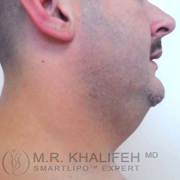 Chin and Neck Liposuction Gallery - Patient 3761805 - Image 1