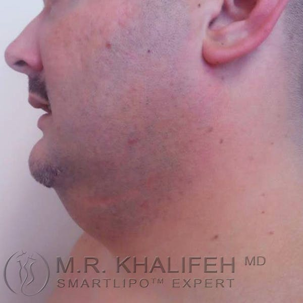 Chin and Neck Liposuction Gallery - Patient 3761805 - Image 3