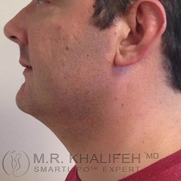 Chin and Neck Liposuction Gallery - Patient 3761805 - Image 4