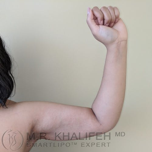 Arm Liposuction Gallery - Patient 3761807 - Image 7