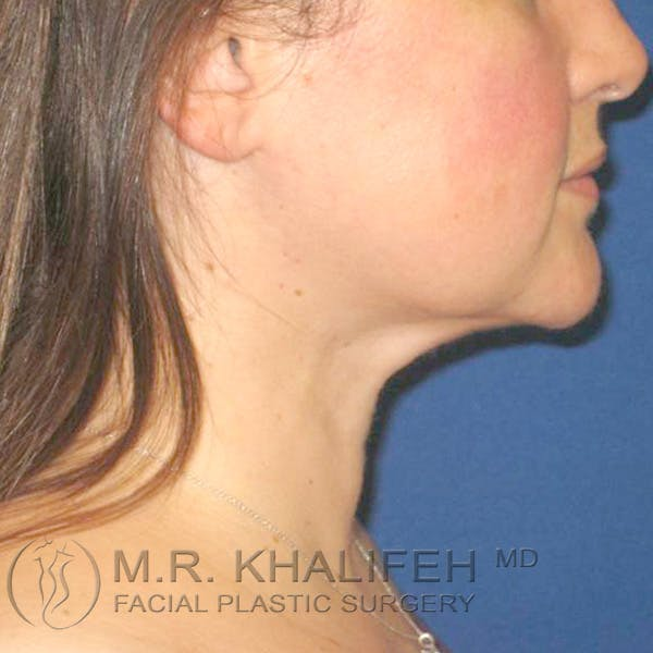 Chin and Neck Liposuction Gallery - Patient 3761830 - Image 2