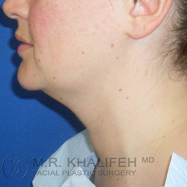 Chin and Neck Liposuction Gallery - Patient 3761830 - Image 3