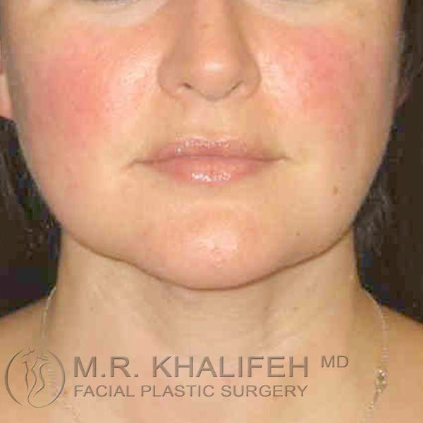Chin and Neck Liposuction Gallery - Patient 3761830 - Image 6