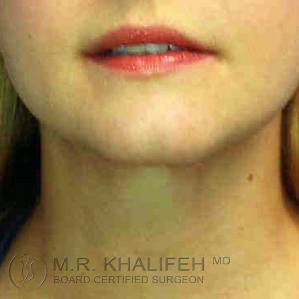 Chin and Neck Liposuction Gallery - Patient 3761839 - Image 6