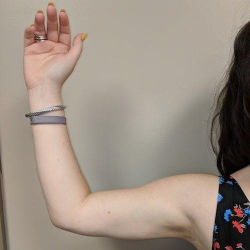 Arm Liposuction Gallery - Patient 3761840 - Image 4