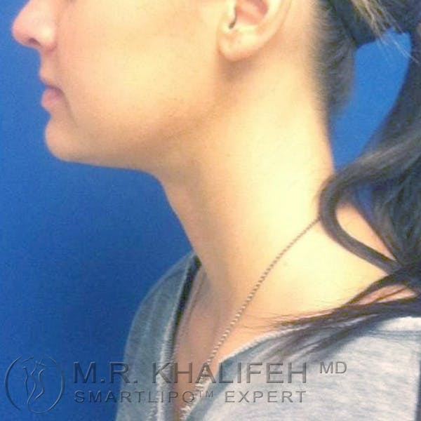 Chin and Neck Liposuction Gallery - Patient 3761841 - Image 2