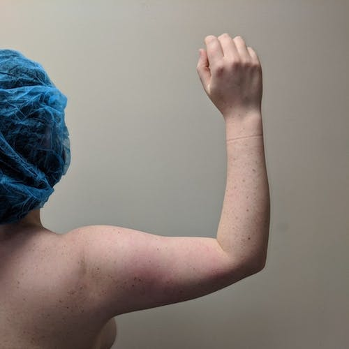 Arm Liposuction Gallery - Patient 3761840 - Image 5