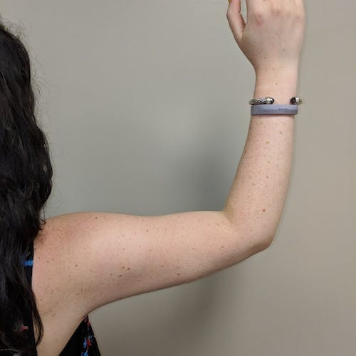 Arm Liposuction Gallery - Patient 3761840 - Image 6