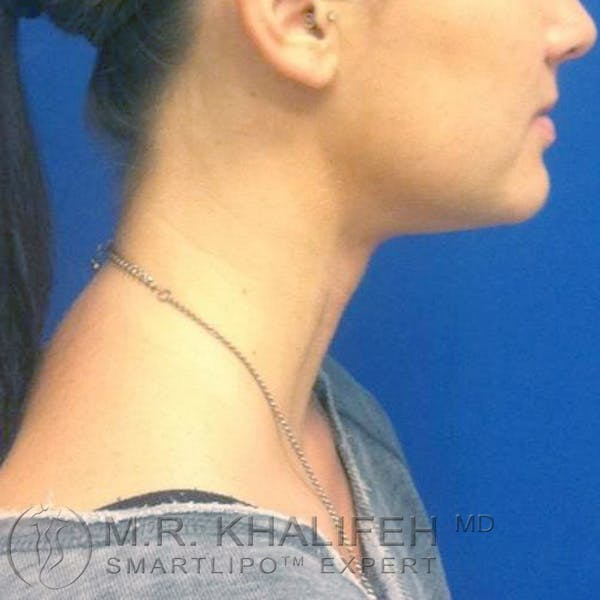 Chin and Neck Liposuction Gallery - Patient 3761841 - Image 4