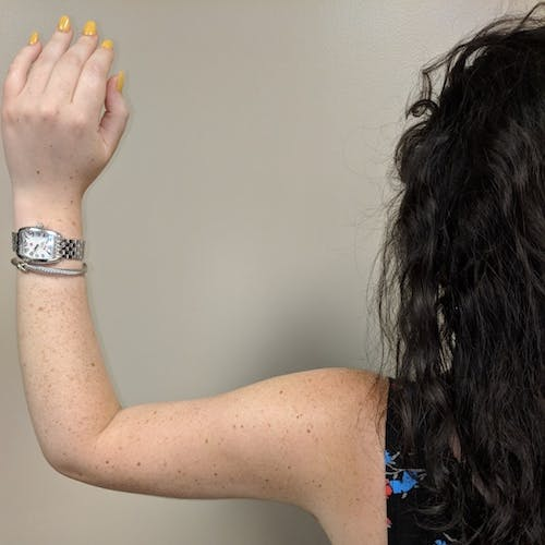 Arm Liposuction Gallery - Patient 3761840 - Image 8