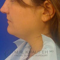 Chin and Neck Liposuction Gallery - Patient 3761847 - Image 1