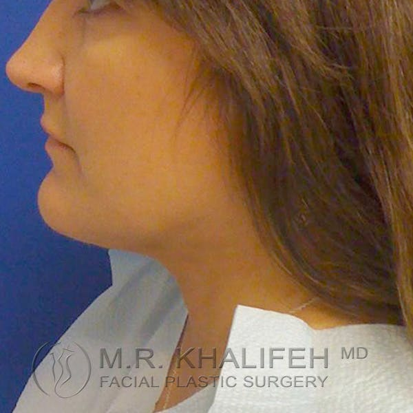 Chin and Neck Liposuction Gallery - Patient 3761847 - Image 2