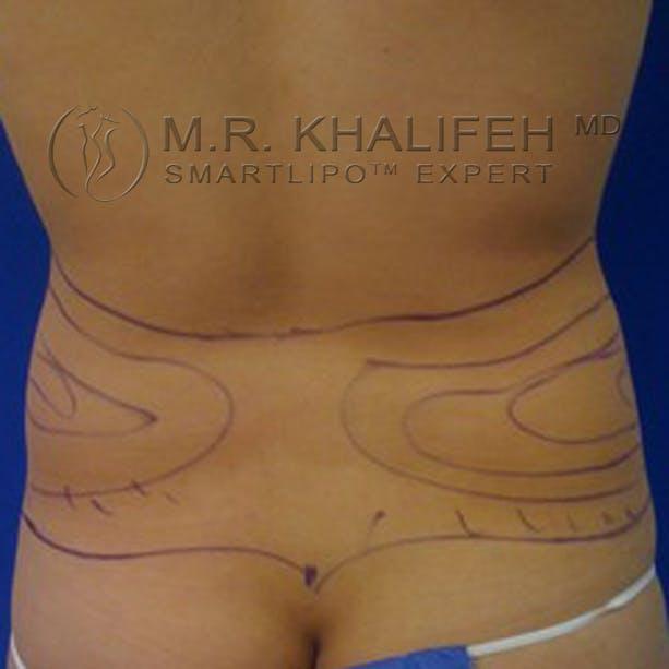 Midback-Bra Line Lipo Gallery - Patient 3761846 - Image 1