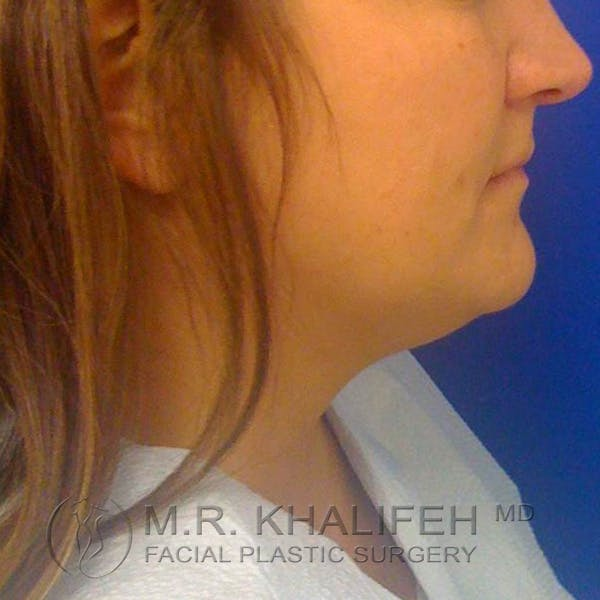 Chin and Neck Liposuction Gallery - Patient 3761847 - Image 3