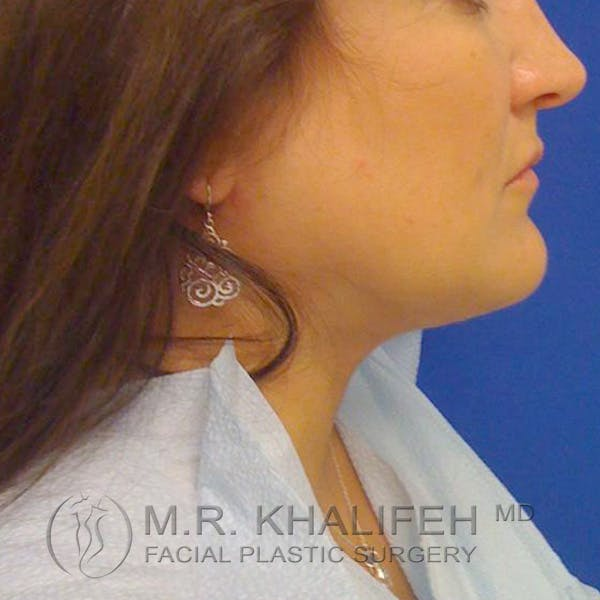 Chin and Neck Liposuction Gallery - Patient 3761847 - Image 4