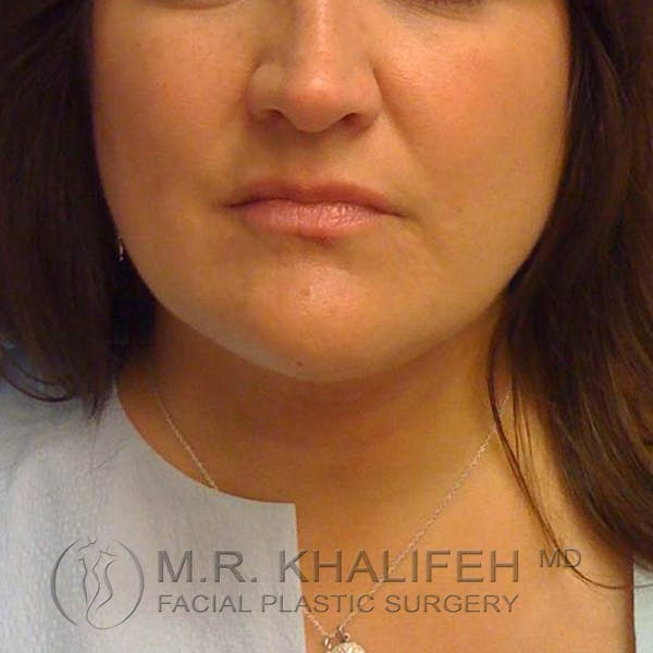 Chin and Neck Liposuction Gallery - Patient 3761847 - Image 6