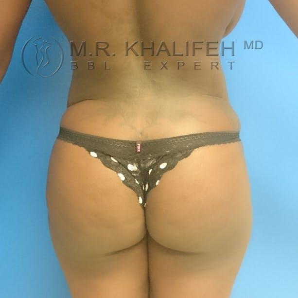 Midback-Bra Line Lipo Gallery - Patient 3761849 - Image 2