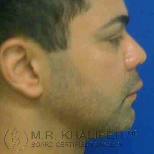 Chin and Neck Liposuction Gallery - Patient 3761848 - Image 4