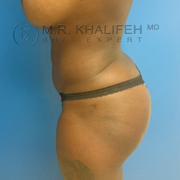 Midback-Bra Line Lipo Gallery - Patient 3761849 - Image 8