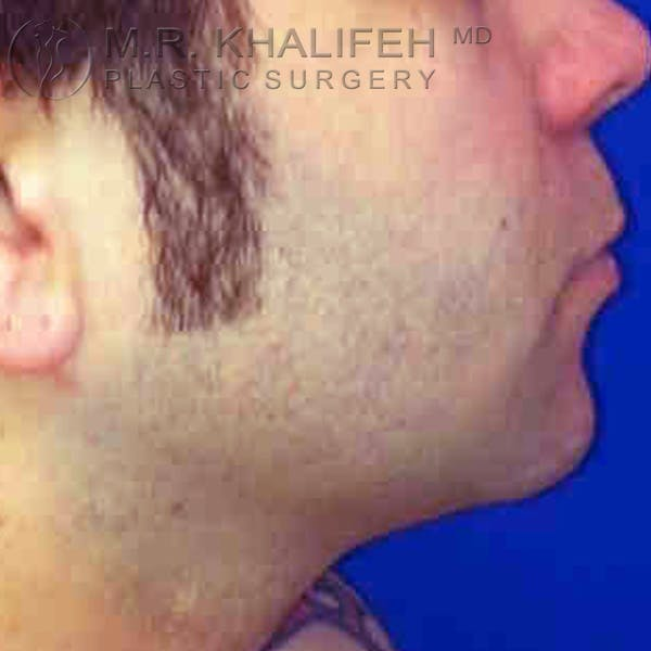 Chin and Neck Liposuction Gallery - Patient 3761850 - Image 2