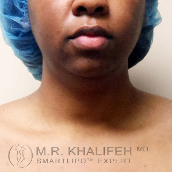 Chin and Neck Liposuction Gallery - Patient 3761854 - Image 1