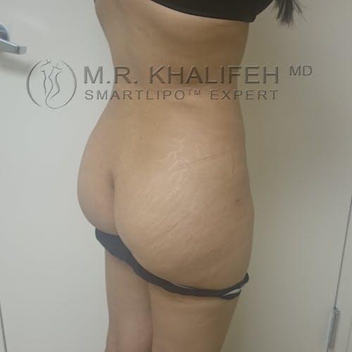 Midback-Bra Line Lipo Gallery - Patient 3761853 - Image 6