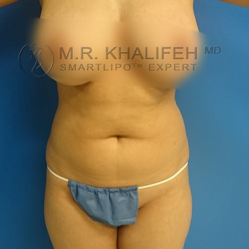 Midback-Bra Line Lipo Gallery - Patient 3761853 - Image 7