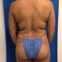 Midback-Bra Line Lipo Gallery - Patient 3761858 - Image 1