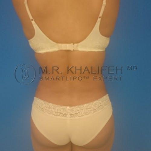 Midback-Bra Line Lipo Gallery - Patient 3761858 - Image 2