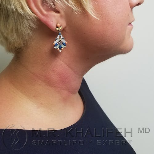Chin and Neck Liposuction Gallery - Patient 3761856 - Image 6