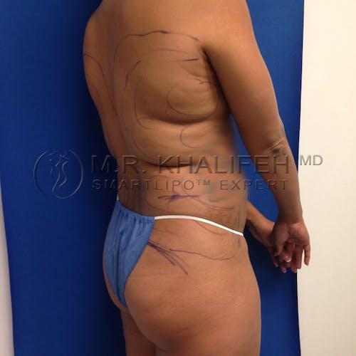 Midback-Bra Line Lipo Gallery - Patient 3761858 - Image 3