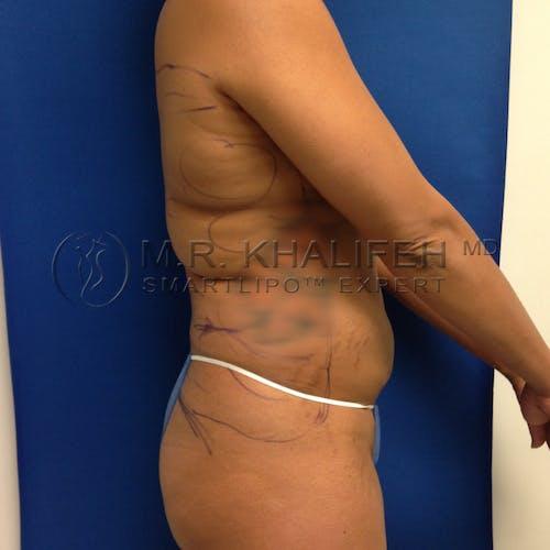 Midback-Bra Line Lipo Gallery - Patient 3761858 - Image 5