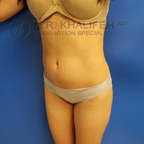 Midback-Bra Line Lipo Gallery - Patient 3761860 - Image 6