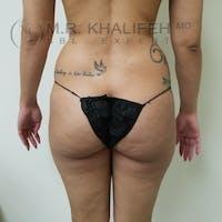 Midback-Bra Line Lipo Gallery - Patient 3761886 - Image 1