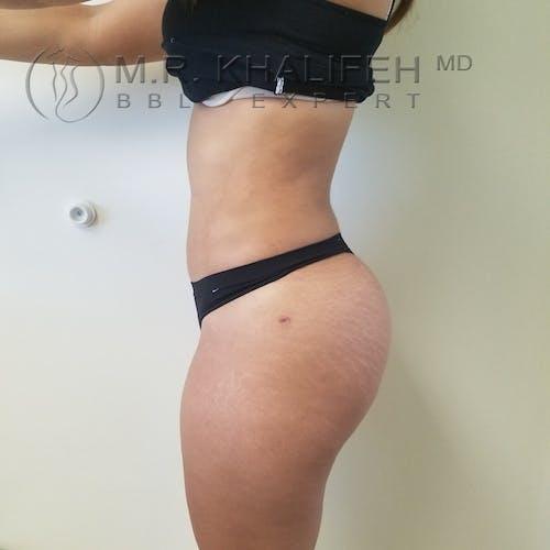 Midback-Bra Line Lipo Gallery - Patient 3761886 - Image 8