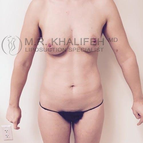 Midback-Bra Line Lipo Gallery - Patient 3761890 - Image 3