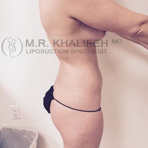 Midback-Bra Line Lipo Gallery - Patient 3761890 - Image 5