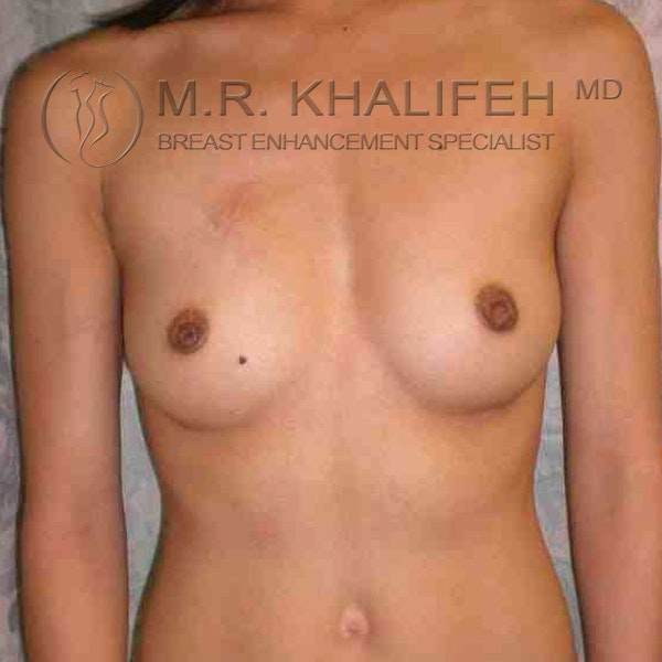 Breast Augmentation Gallery - Patient 3761894 - Image 1