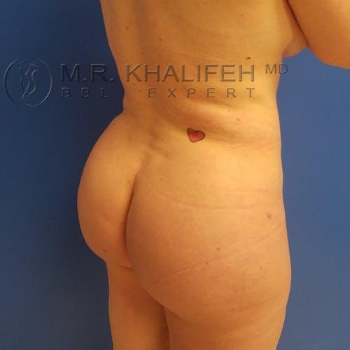 Midback-Bra Line Lipo Gallery - Patient 3761896 - Image 4