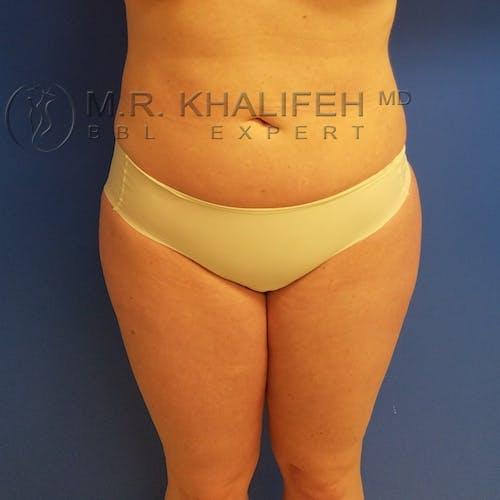 Midback-Bra Line Lipo Gallery - Patient 3761896 - Image 10