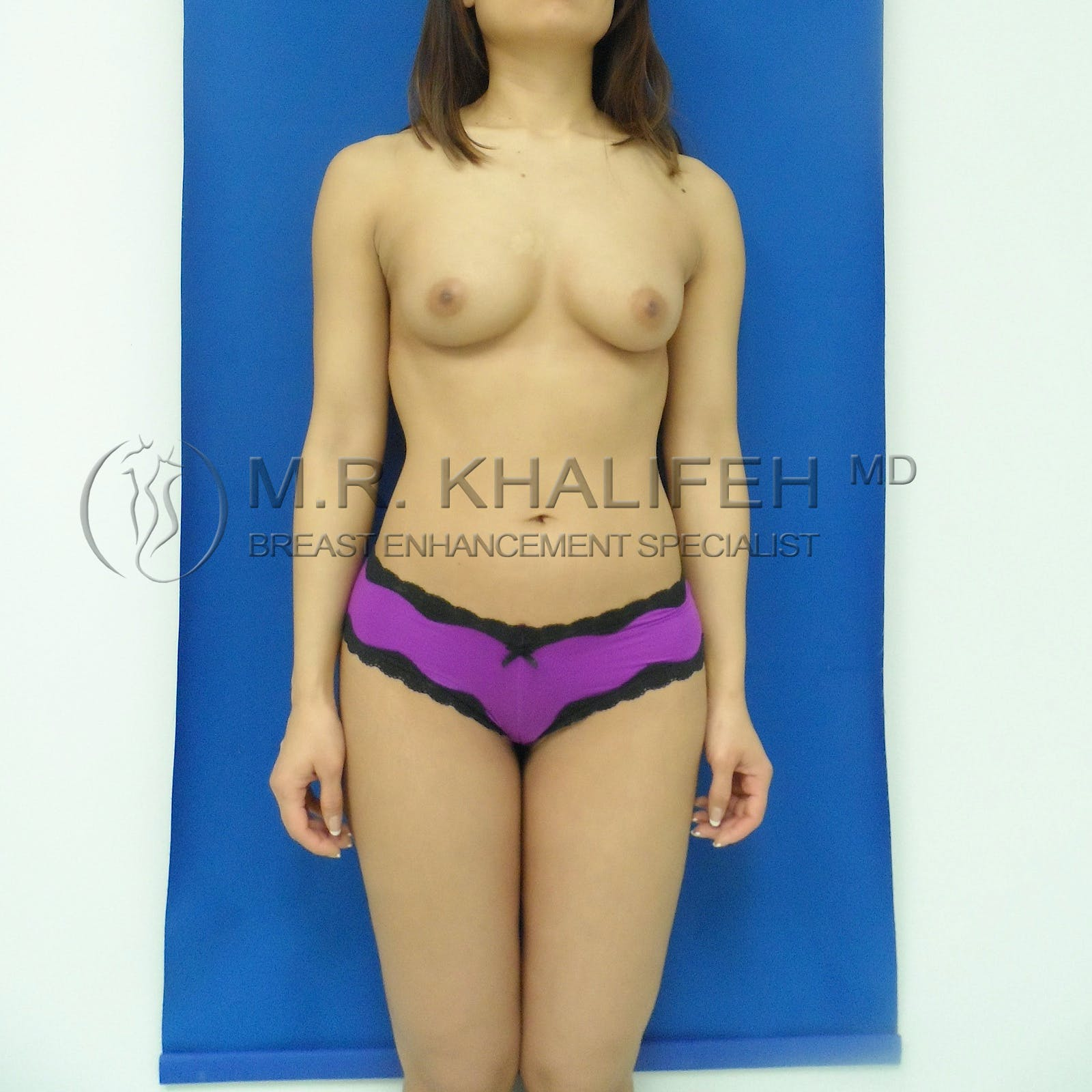 Fat Transfer Breast Augmentation Gallery - Patient 3761902 - Image 2