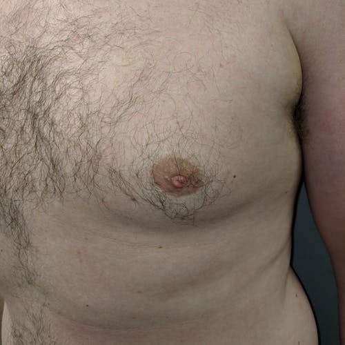 Inverted Nipple Correction Gallery - Patient 3761906 - Image 3