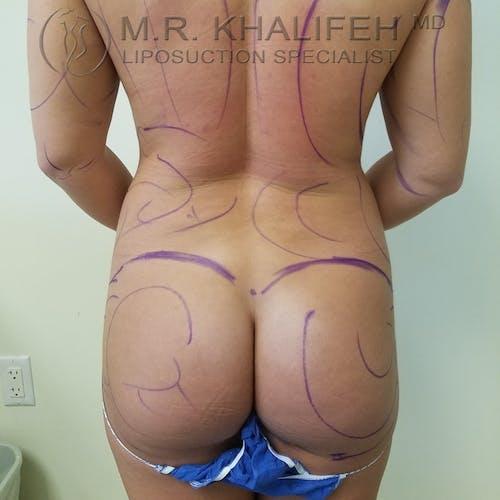 Midback-Bra Line Lipo Gallery - Patient 3761910 - Image 1
