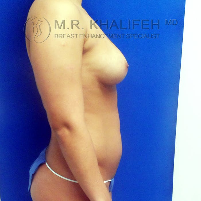 Fat Transfer Breast Augmentation Gallery - Patient 3761912 - Image 5