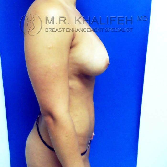 Fat Transfer Breast Augmentation Gallery - Patient 3761912 - Image 6