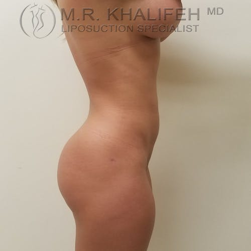 Midback-Bra Line Lipo Gallery - Patient 3761910 - Image 8